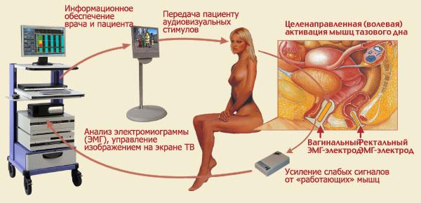 восстановление тонуса мышц влагалища-уь2